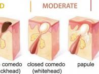 cấu trúc da mụn